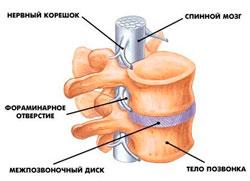 Поясничный остеохондроз лечения и причины