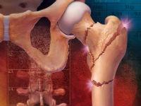 Остеопороз народные методы лечения