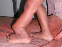 Ложный сустав на ноге