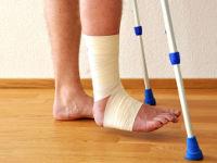 Нога при переломе голени