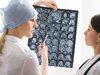 Врач рассматривает МРТ-снимки