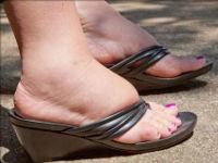 Опухшие ноги