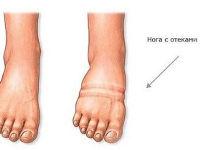 Опухлость стопы