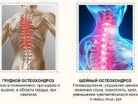 Шейный и грудной отдел позвоночника
