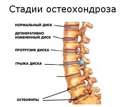 Боль под ребрами отдает в поясницу