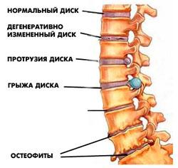 Всю жизнь болит спина