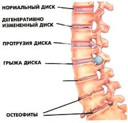 Детские болезни с болью шеи
