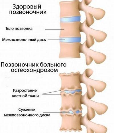 Устранить головокружение при шейном остеохондрозе