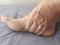 Ступня пожилого человека