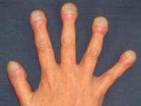 Пальцы с уплотненными ногтями
