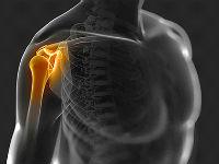 Изображение - Показать плечевой сустав plech-su