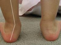 Детские кривые ножки