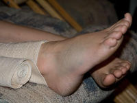 Подвернула ногу в щиколотке больно что делать