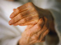 полиартрит кистей рук