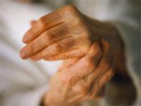 Артрит пальцев рук ревматоидный первые симптомы и лечение диета народные средства