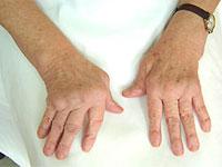 полиартрит пальцев на руках