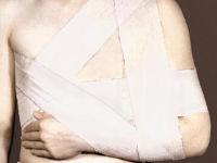 Повязка дезо на плечевой сустав фиксирующий бандаж: схема наложения и сроки использования