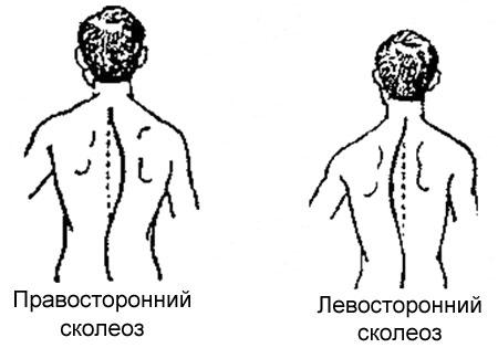 Кифоз грудного отдела позвоночника 3 степени лечение