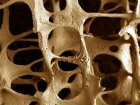 Структура кости при остеопорозе