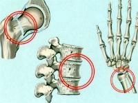 Поражение костей при остеопорозе