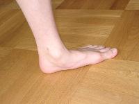 Плоская стопа