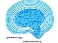 Протрузия межпозвоночного диска