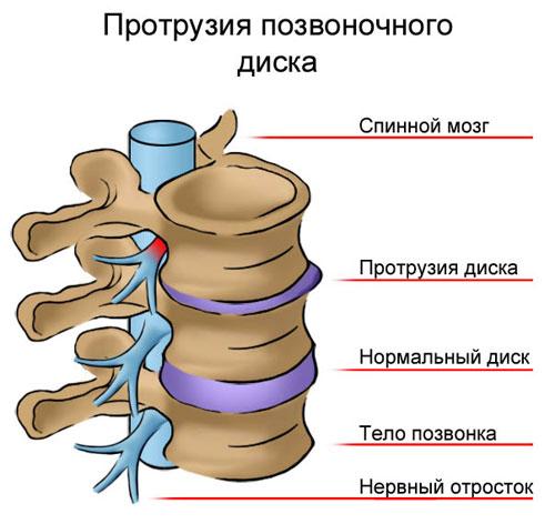 Грудной остеохондроз может отдавать в левую руку