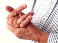 Плохо сгибается средний палец правой руки