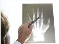 Рентген-снимок руки