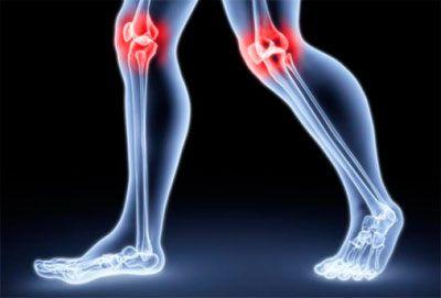 Как уберечь суставы от артрозов, артритов