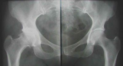 рентгенограмма тазобедренного сустава