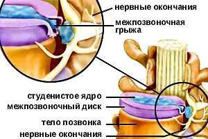 Остеохондроз и его осложнения