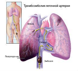 Народные средства от болей в затылке и шее