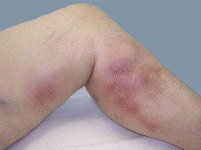 Венозный тромбоз ноги