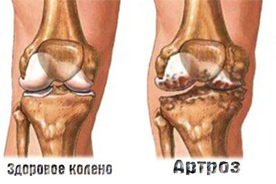 Болит коленный сустав 4 степени чем лечить как