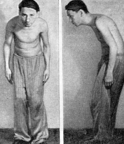 Боли в поясницы со спины и слева под ребро