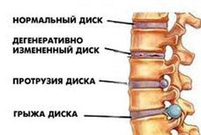 Уменьшить боли в спине