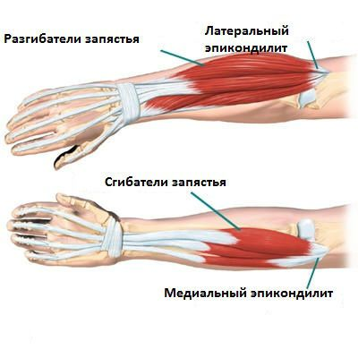 Мышцы руки, которые повреждаются при эпикондилите