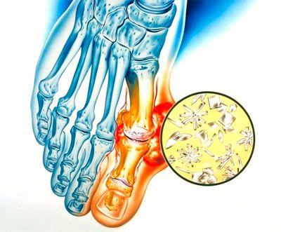 отложение кристаллов мочевой кислоты