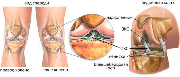 Частичное повреждение передней крестообразной связки коленного сустава