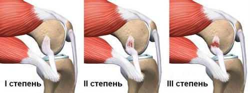 Степени разрыва связок колена
