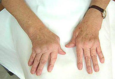 кисти при ревматоидном полиартрите