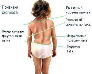 Профилактика сколиоза в детских садах