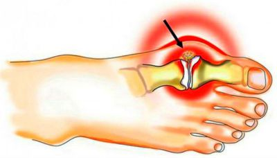 артрит 1-го плюснефалангового сустава
