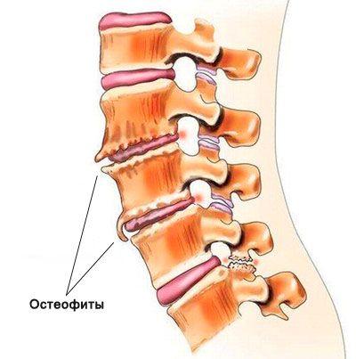 Mts th 7 дегенеративно дистрофические изменения остеохондроз груднова отдела позваночника
