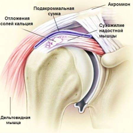 Если болит плечевой сустав