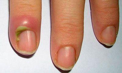 Обследование ювенильного ревматоидного полиартрита
