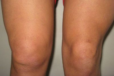 Припухание колена