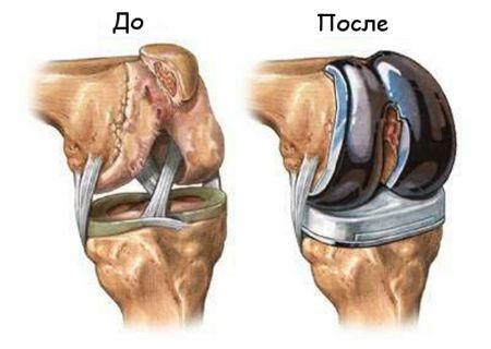 эндопротезирование колена