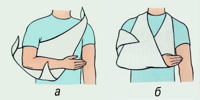 Косыночная повязка на локтевой сустав